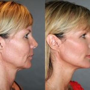 best-anti-aging-skin-treatment-reno-nevada