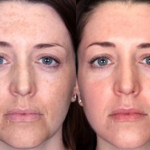 best facial chemical peels reno nevada