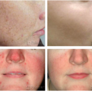 ipl-photofacial-treatment-cost-reno-nevada-300x215
