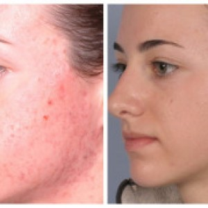 best microdermabrasion treatment cost reno nevada
