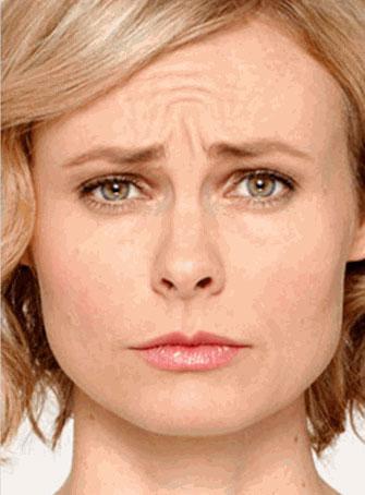 Aesthetics MedSpa Reno Botox