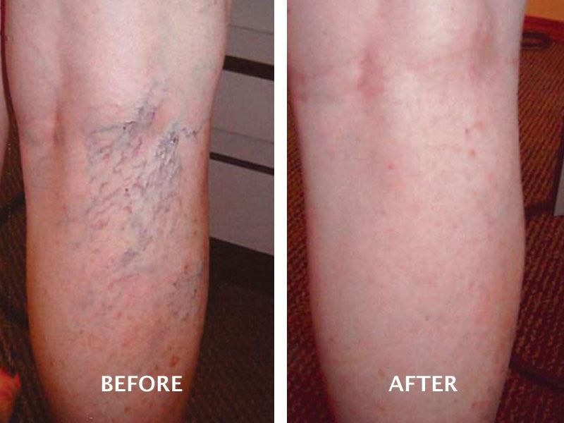 Laser Vein Therapy Reno
