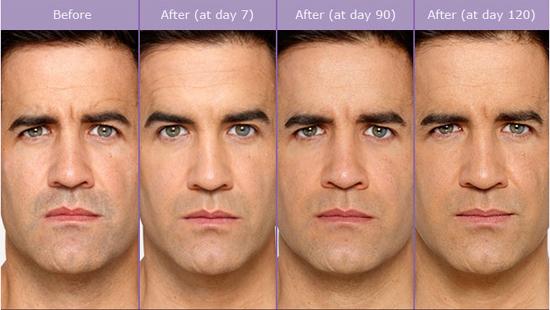 Aesthetics MedSpa Male and Female Botox Treatments