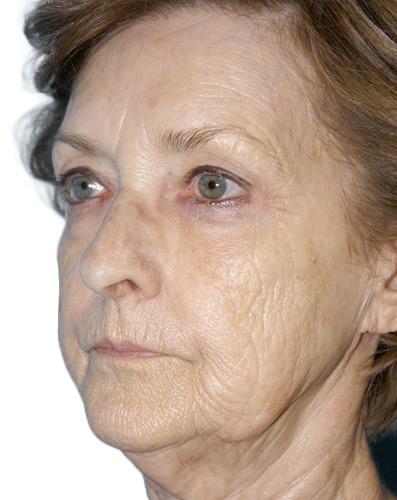 Aesthetics MedSpa Skin Refirm