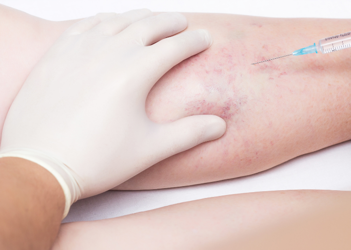 this is sclerotherapy